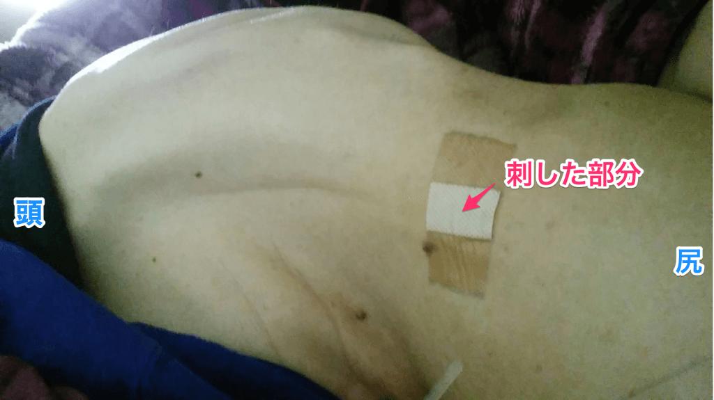 腰椎穿刺後の背中
